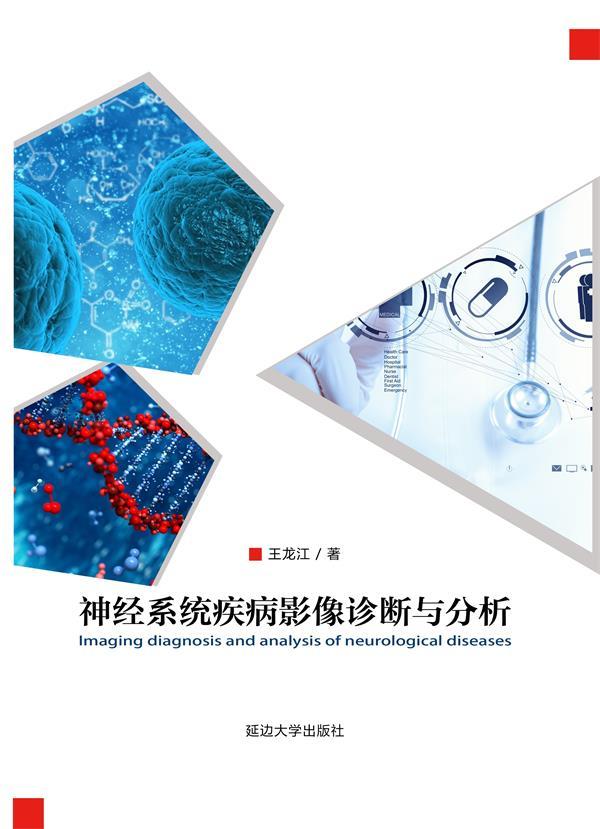 神经系统疾病影像诊断与分析